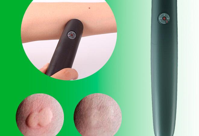 Eco Pest Bite tecnologia termo-pulsante: come si utilizza? A cosa serve? Opinioni acquirenti e prezzo